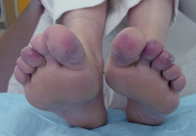 blue-toe-syndrome-pictures-2