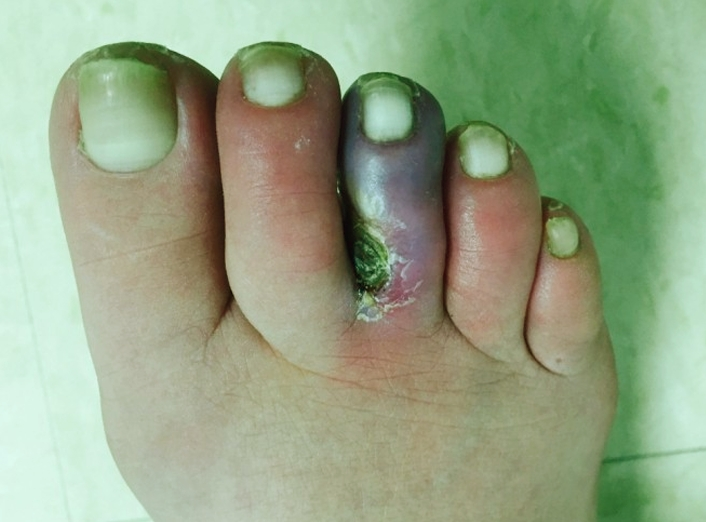 blue-toe-syndrome-pictures-3