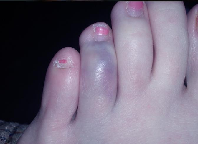 blue-toe-syndrome