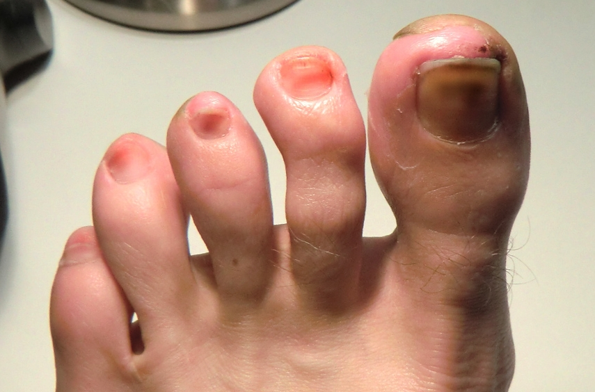 Discolored Toenails