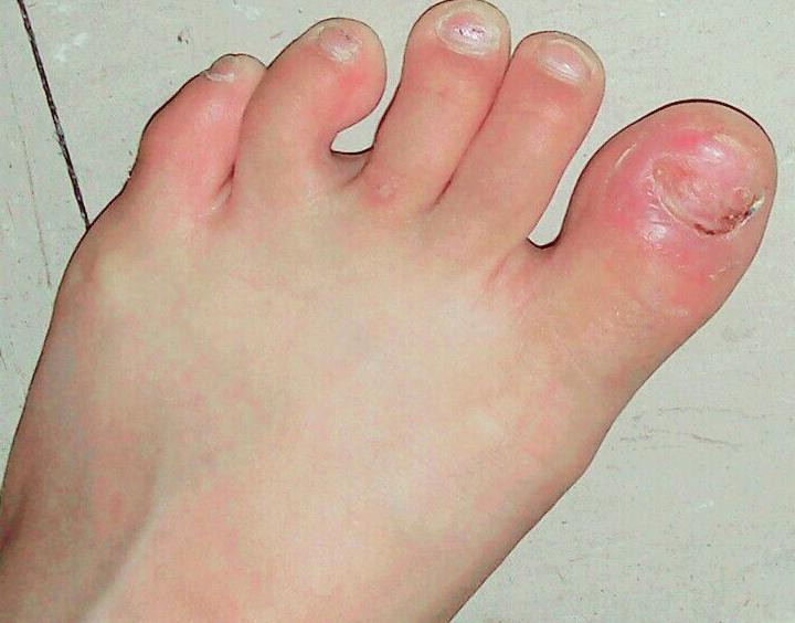 stubbed toe