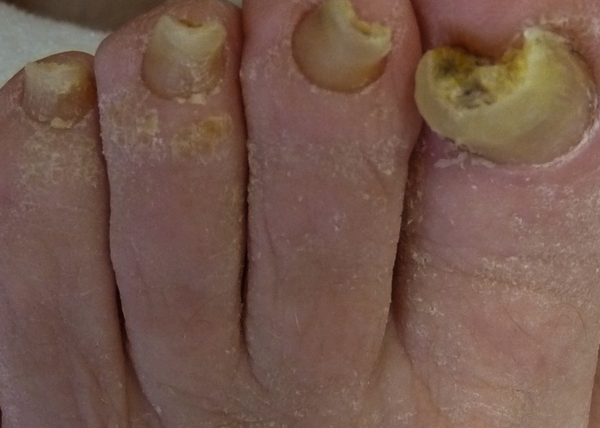 thick toenails pictures 2