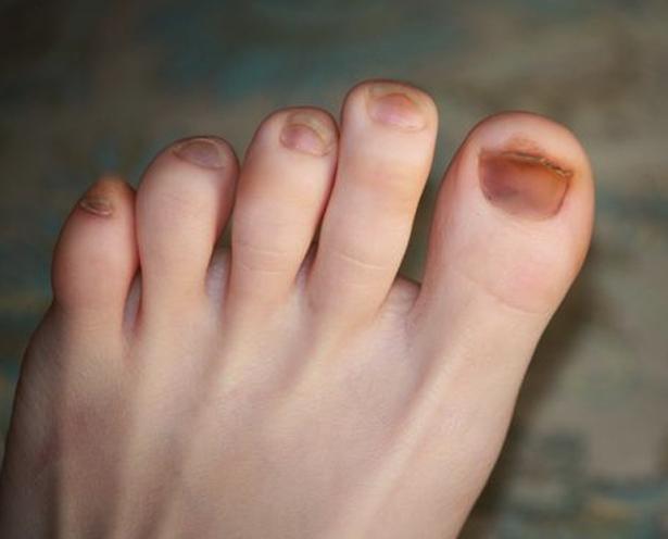 toenail-discoloration