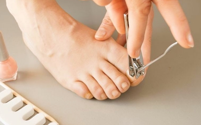Toenail Removal - Procedure, Recovery time and Aftercare