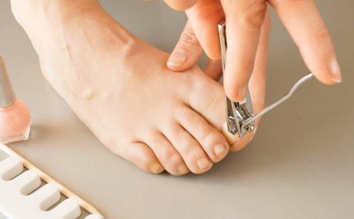 toenail-removal