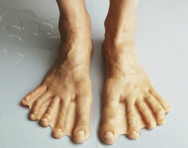 webbed toes - causes, diagnosis, surgery and pictures, Skeleton