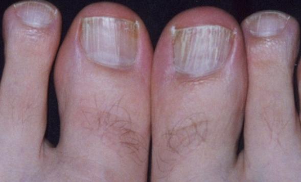white-toenails-pictures-2