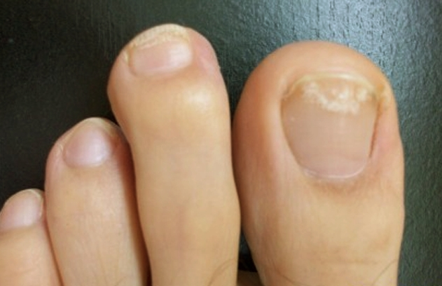Why Do I Have White Toenails Your Nails Which Are Made Up Of A Protein Called Keratin Serve The Purpose Protecting Certain Areas Hands And