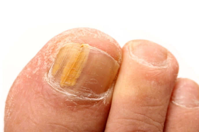 Yellow Toenails Symptoms Causes Treatment Pictures