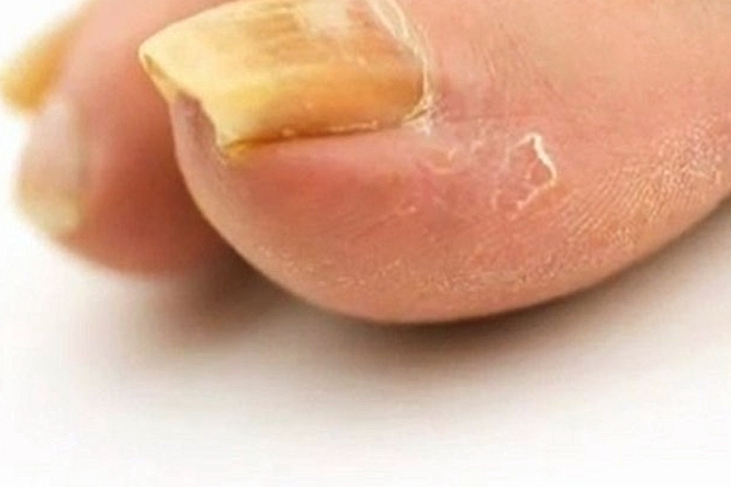Yellow Toenails - Symptoms, Causes, Treatment, Pictures
