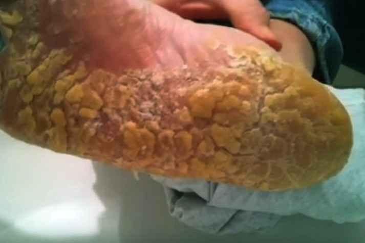 Don T Put Off Nagging Foot Problems Podiatrist